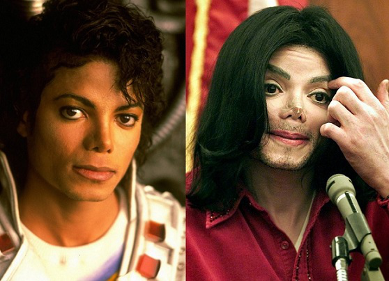 Photo of Michael Jackson before and after surgery in 2009 | Hobby Keeper Articles